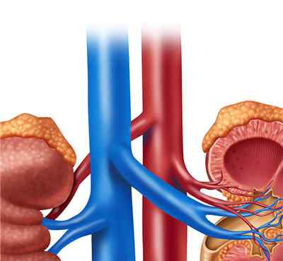 肾绞痛最佳治疗方法 肾绞痛怎么彻底治疗?